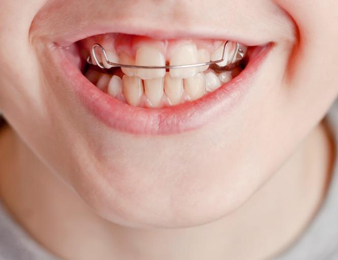 ortodoncia-removible
